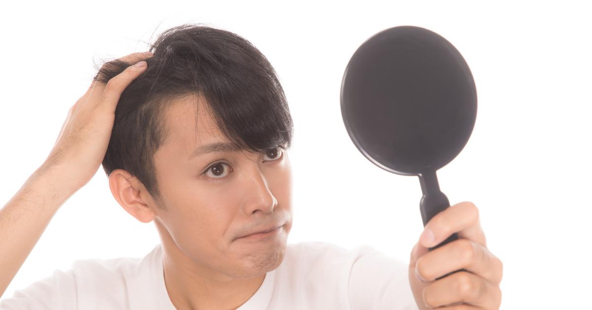 フィナステリドとザガーロどっちが効果があるのか?④前髪への効果