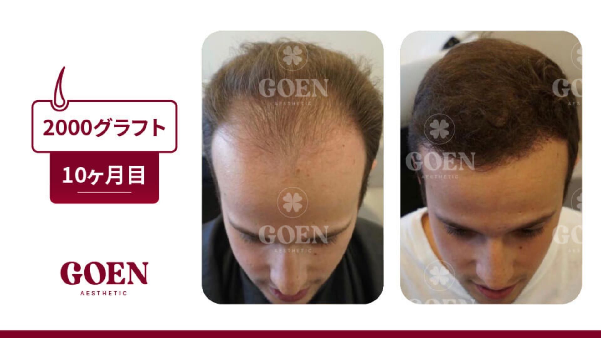 60万円のトルコ植毛がおすすめの理由④安心の一年アフターサポート